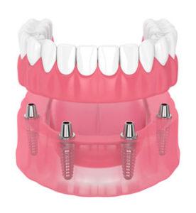 Full Implant Denture